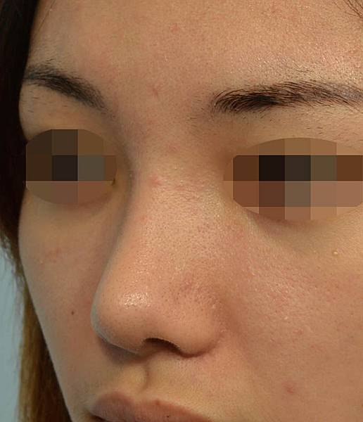 結構式鼻整形後