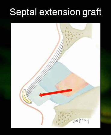 septal extension