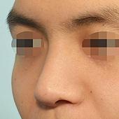 結構式鼻整形