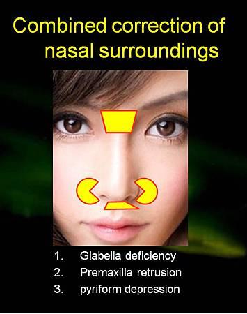 nasal surroudings
