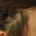 拉皮後的疤痕 植髮後.jpg