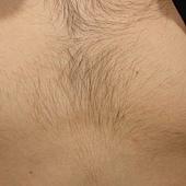 胸毛擷取後一年.jpg