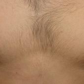 胸毛擷取前.jpg