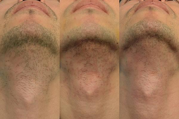 鬍鬚傷口的恢復.jpg