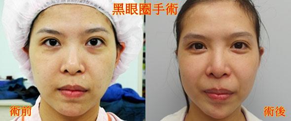 觀念大轉變:黑眼圈竟然是要用手術來治療的