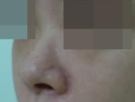 二代矽膠+耳軟骨