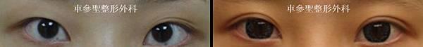 日式訂書針雙眼皮