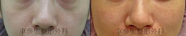 眼袋黑眼圈手術