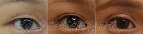 日式訂書針雙眼皮手術-車參聖