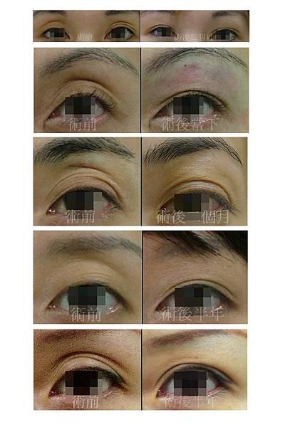 眼窩凹陷-術前/術後對比照
