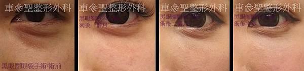 黑眼圈眼袋手術