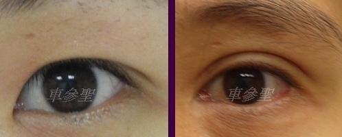 日式訂書針雙眼皮打造混血瞳娃娃眼