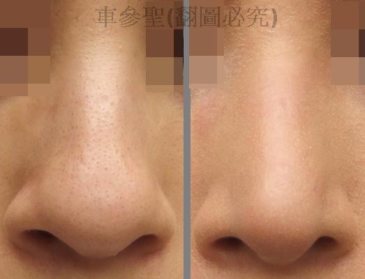日式鼻雕+縮鼻頭手術