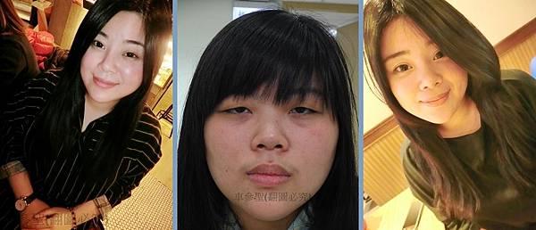 日式訂書針雙眼皮/日式鼻雕/黑眼圈