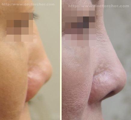 內開式全自體耳軟骨鼻尖形成術