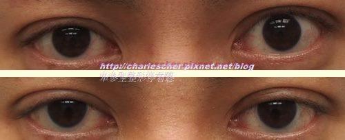 車參聖整形停看聽---52 提眼肌手術的另一種類型---驚訝眼的處理