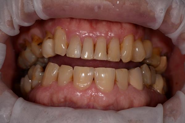 陶瓷貼片都很假嗎?權泓牙醫黃泓傑醫師巴西SKYN取經紀實 (2)
