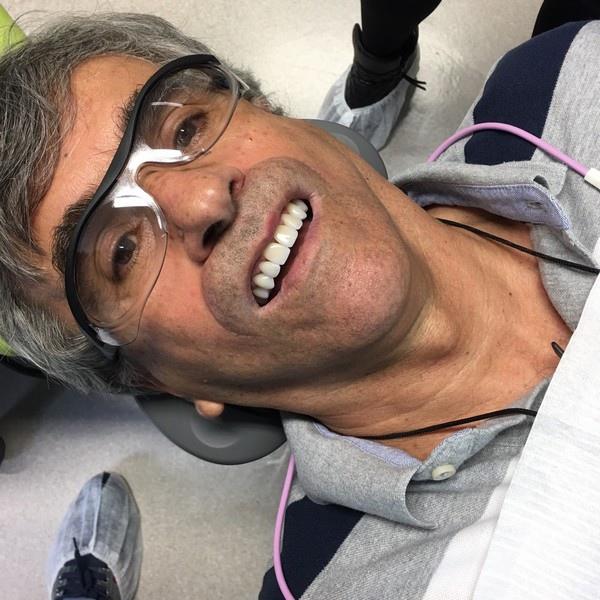 陶瓷貼片都很假嗎?權泓牙醫黃泓傑醫師巴西SKYN取經紀實 (11)