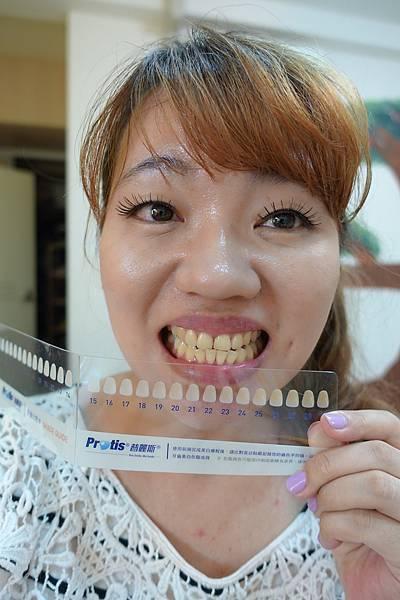 普麗斯牙齒美白貼片7.jpg