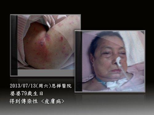 婆婆病情 1020708-1020713 記錄 -2