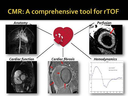 Cardiac MRI for rTOF_APSC2012