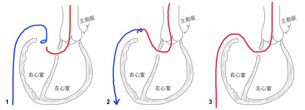 AV loop