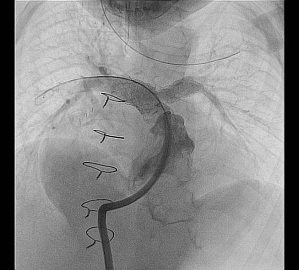 after stents.bmp