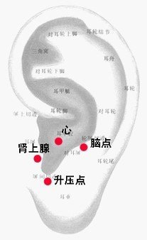 心血管系統疾病.jpg
