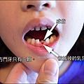 前面那顆乳牙,是被後面那顆長出來的成齒頂鬆的。