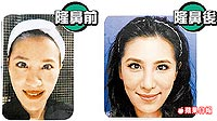 小禎本來是蒜頭鼻(左圖),5月時接受韓式隆鼻手術,鼻頭變長、變挺(右圖)。.jpg