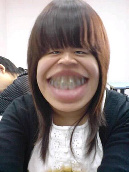 哈哈!這張凸顯了我的牙套ㄦ~