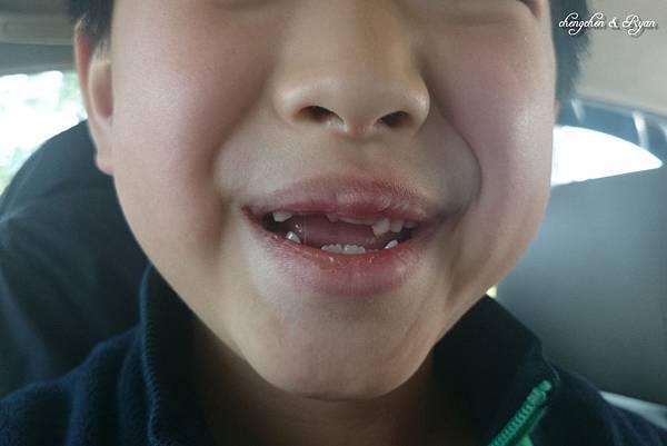 blg換牙02
