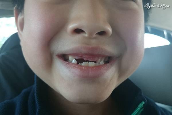 blg換牙03
