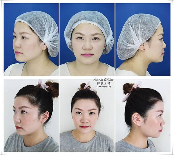 台北醫美-美麗境界診所-肉毒瘦小臉02.jpg