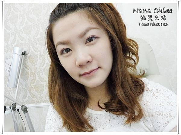 台北醫美-美麗境界診所-肉毒瘦小臉20.jpg