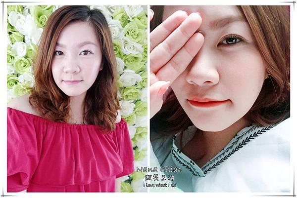 台北醫美-美麗境界診所-肉毒瘦小臉22.jpg