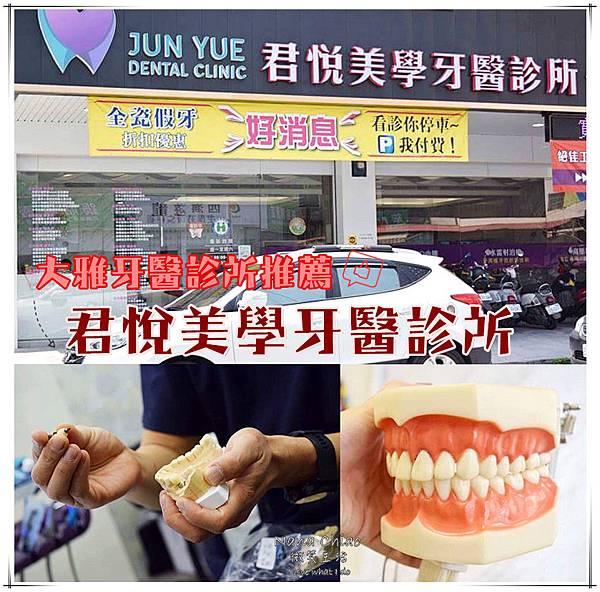 大雅牙醫診所推薦-君悅美學牙醫診所.jpg