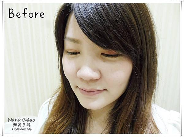 新竹醫美推薦-關之美時尚診所-音波拉提07.jpg
