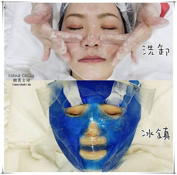 新竹醫美推薦-關之美時尚診所-音波拉提08.jpg