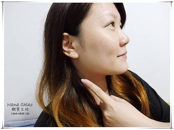 新竹醫美推薦-關之美時尚診所-音波拉提16.jpg