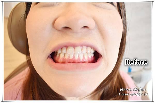 超植牙醫診所10.jpg