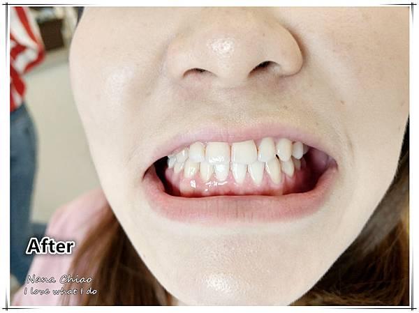 超植牙醫診所13.jpg