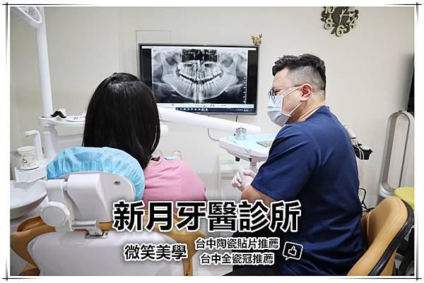 新月牙醫診所-台中陶瓷貼片推薦-台中全瓷冠推薦.jpg