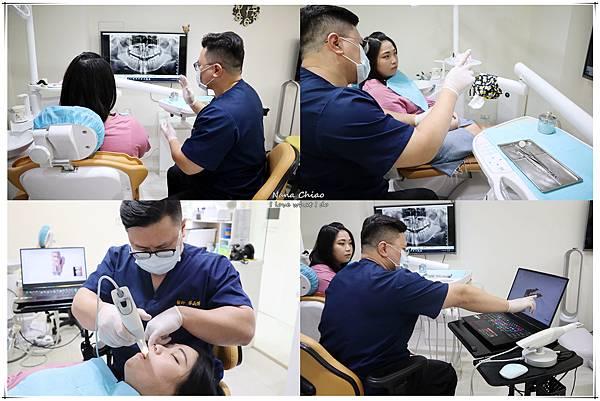 新月牙醫診所-台中陶瓷貼片推薦-台中全瓷冠推薦07.jpg