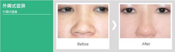 提升臉部比例【韓式隆鼻】雕塑理想鼻型,五官輪廓更立體2