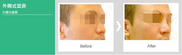提升臉部比例【韓式隆鼻】雕塑理想鼻型,五官輪廓更立體4