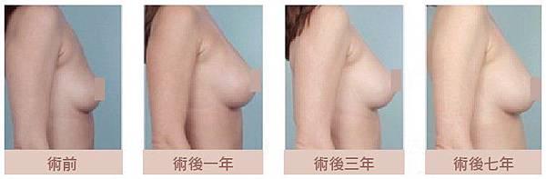 水滴型隆乳案例│台中群英整形