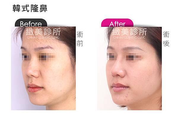 韓式隆鼻4