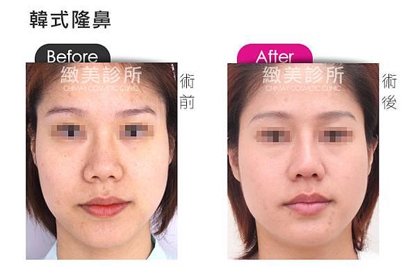韓式隆鼻1