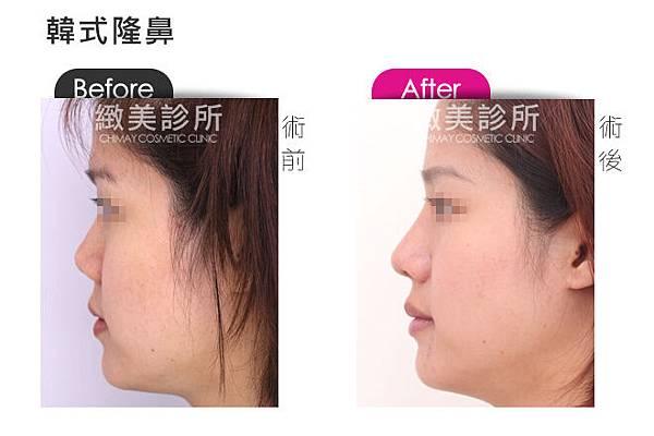 韓式隆鼻5